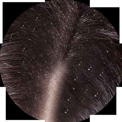 Cheveux pellicules